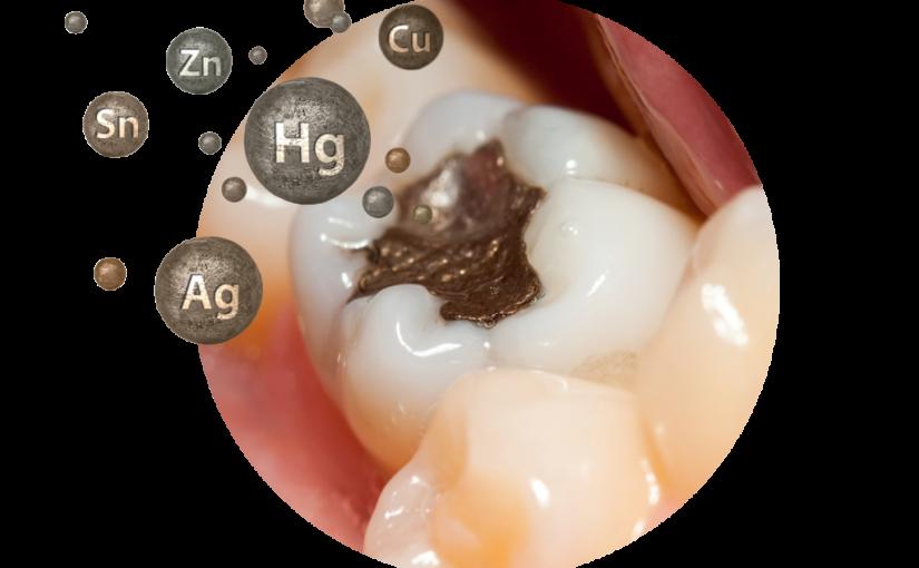 Amalgam odstraniti iz naših ust – da ali ne?